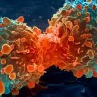 Nisin: A Food preservative kills cancer cells