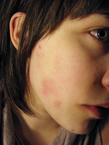 How To Get Rid Of Your Bothersome Pimples
