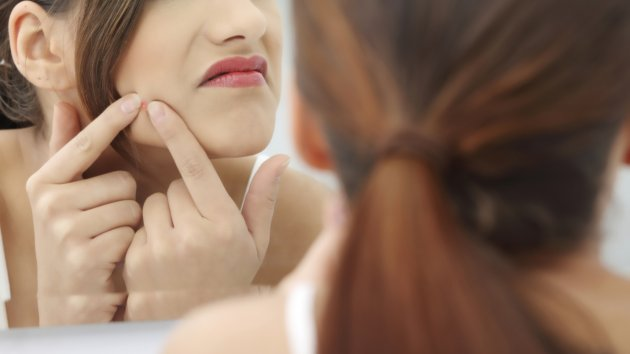 Get Severe About Treating Acne breakouts And Receiving Rid Of It