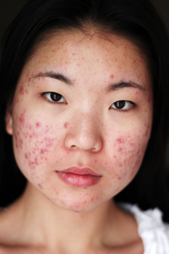 Coping With Troublesome Acne Issues