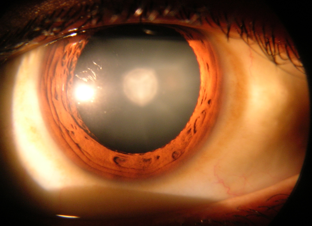 Dealing with Cataract