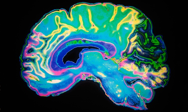 Male and female brains are structurally same : new study
